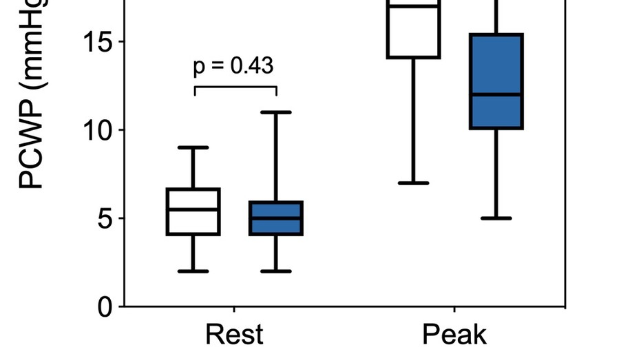 Unexplained Exertional Dyspnea Caused by Low Ventricular Filling Pressures: Results from Clinical Invasive Cardiopulmonary Exercise Testing